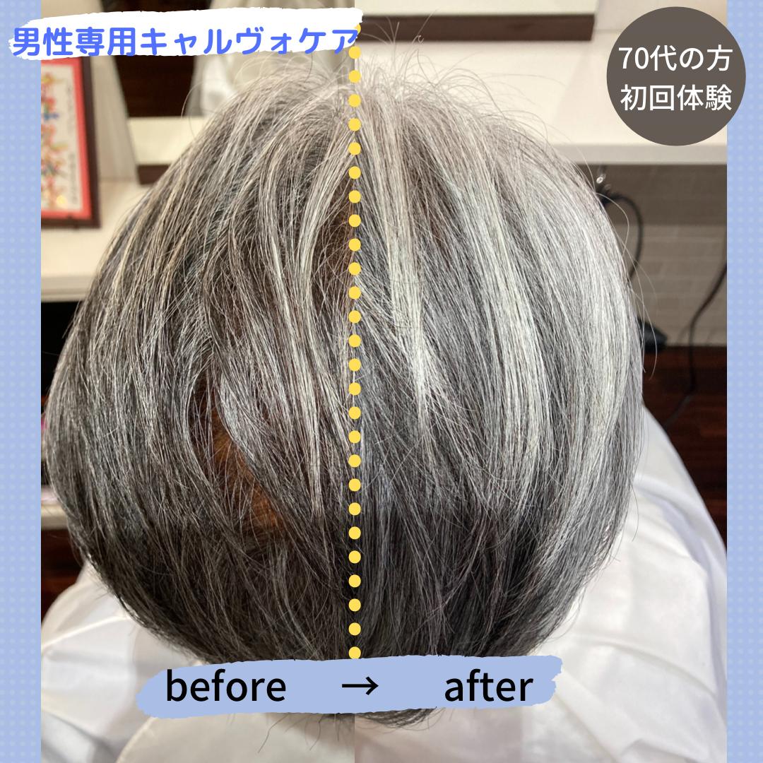 男性薄毛予防キャルヴォケア - 育毛剤やサプリメントに頼らずに、ご自身の持つ力で髪を維持します。ホームケアなどはなく定期的な頭皮のメンテナンスを続ける事で、男性薄毛のリスクを軽減します。