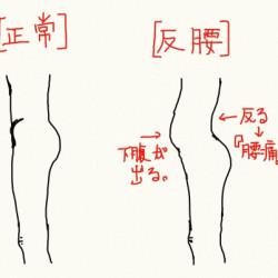 慢性腰痛の原因!「反り腰」!
