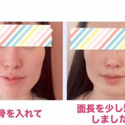 エラと頬骨の出っ張りを改善